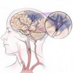 upchaté cievy v mozgu - ischémia
