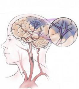 mozgová príhoda - ischémia
