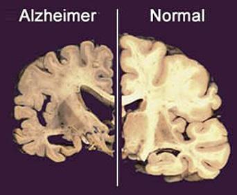 Mozog pacienta s Alzheimerovou chorobou