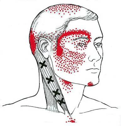 bolest zatylku hlavy