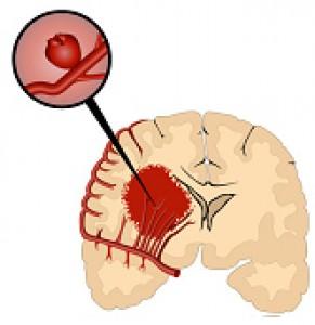 krvácanie do mozgu