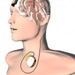 hlboká mozgová stimulácia - schéma
