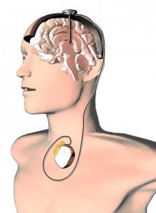 schéma neurostimulátora