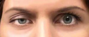 pokles očného viečka