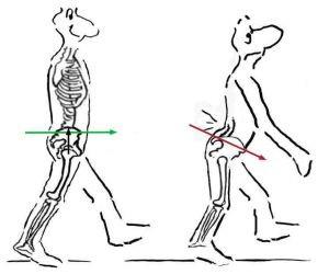 chôdza chrbtica