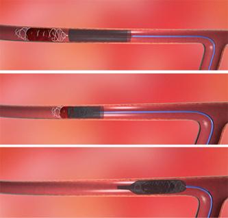 schémia trombektómie