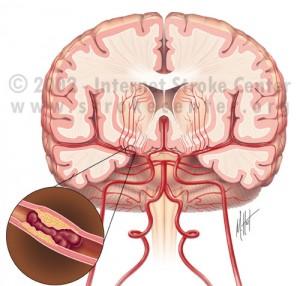 zrazenina v mozgu - ischémia