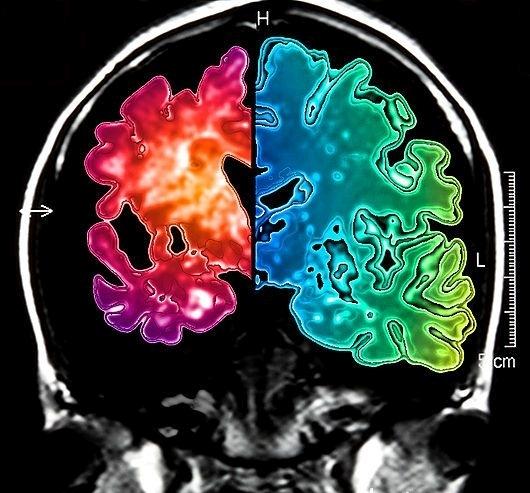 atrofia mozgu