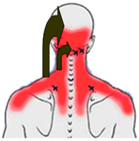 cervikokraniálny syndróm - schéma svalových spazmov